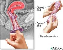 Cara Pakai Kondom Wanita